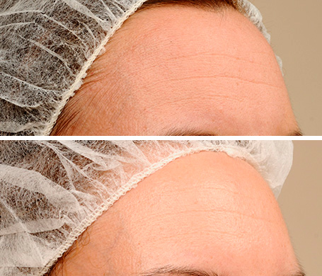 anti-aging skincare before and after anti-wrinkle cream