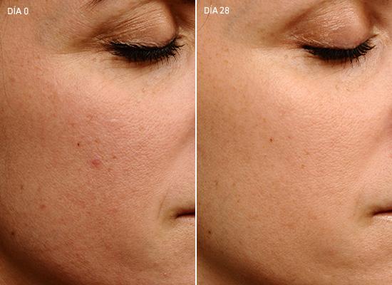 anti-aging skin cream firmer younger looking skin